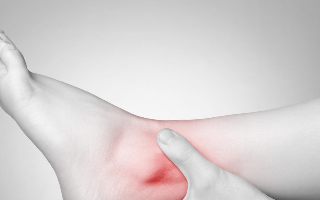 Our Top Tips To Beat Ankle Pain